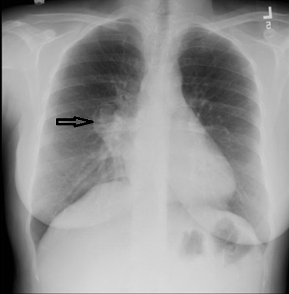 Chest-X-ray-revealed-a-right-sided-para-pericardial-mass-in-the-anterior-mediastinum-and-a-significant-decrease-in-the-size-of-the-right-middle-lobe-opacity