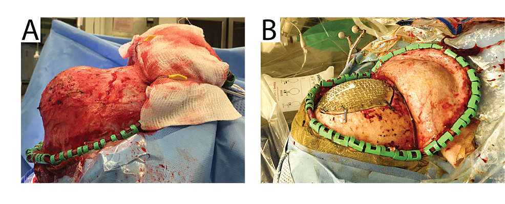 Intraoperative-photographs.