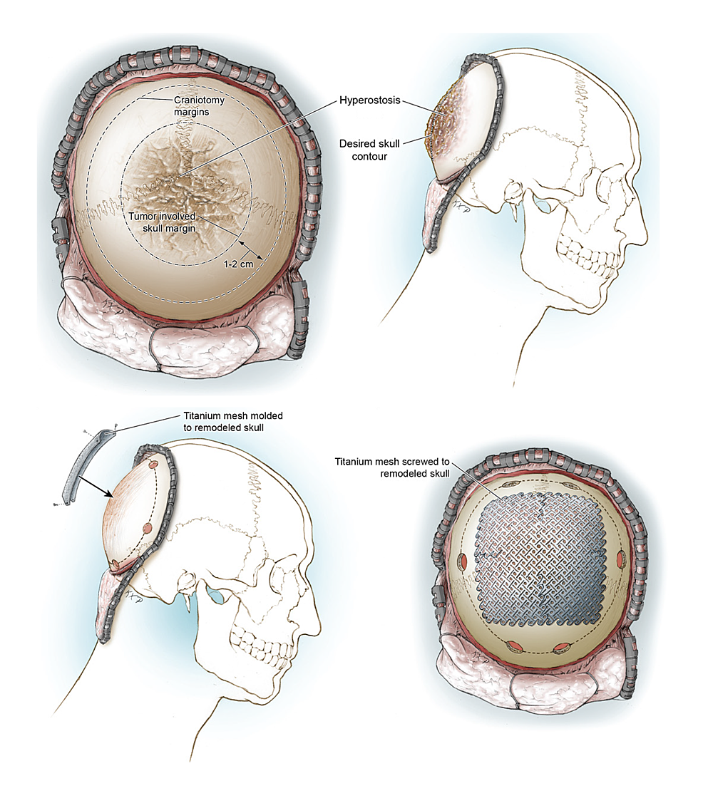 Illustrations-of-the-in-situ-cranioplasty-method.-
