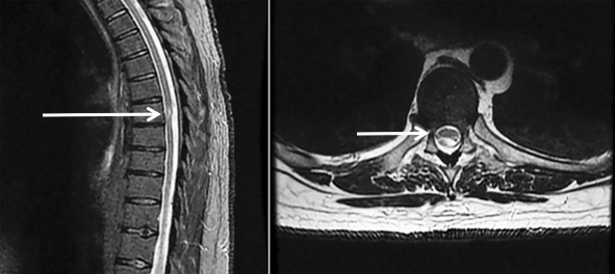 "Sagittal-and-Axial-T2-magnetic-resonance-imaging-(MRI)-demonstrating-dorsal-cord-indentation-at-T7-8-concerning-for-possible-""scalpel""-sign."
