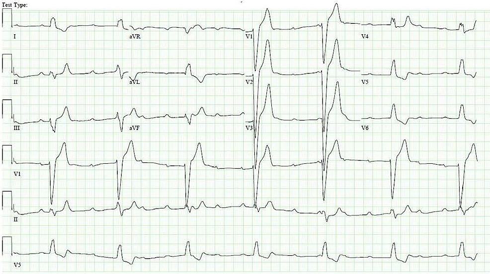Electrocardiogram-showing-complete-heart-block-with-a-wide-complex-escape-rhythm