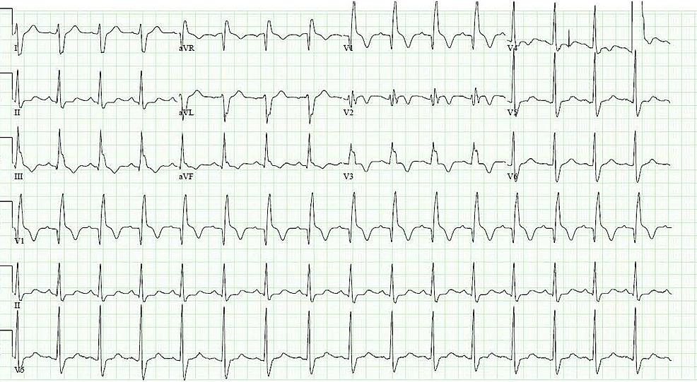 Electrocardiogram-showing-bifascicular-block-(complete-right-bundle-branch-block-and-left-posterior-fascicular-block)