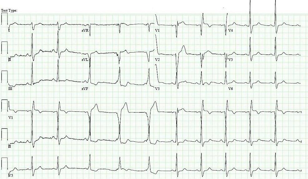 Electrocardiogram-showing-complete-heart-block,-incomplete-right-bundle-branch-block,-left-posterior-fascicular-block-and-ST-elevations-in-leads-V1,-V2-and-V3-suggestive-of-anteroseptal-myocardial-infarction
