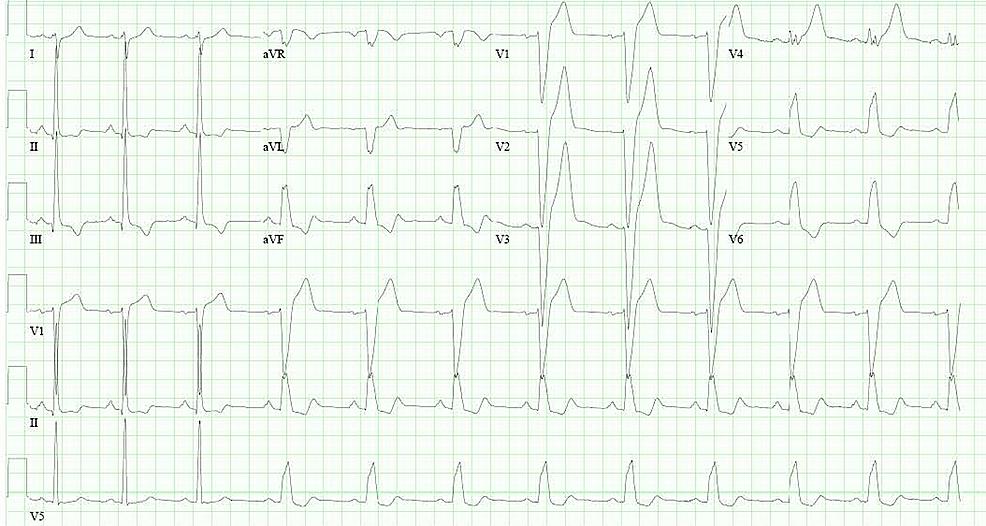 Electrocardiogram-showing-complete-left-bundle-branch-block