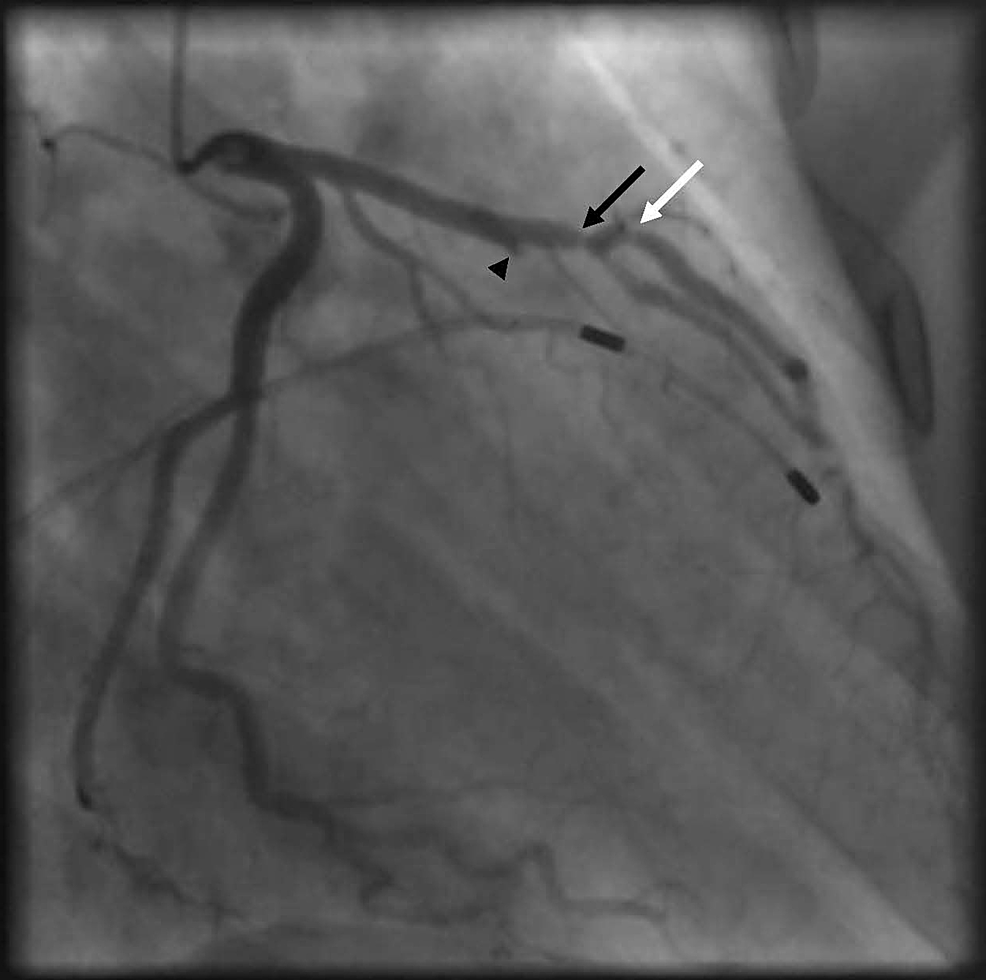 Coronary-angiography-showing-100%-stenosis-of-the-first-septal-perforator-(black-arrow-head),-90%-stenosis-of-the-proximal-LAD-before-the-first-diagonal-(black-arrow)-and-85%-stenosis-of-the-proximal-diagonal-artery-at-the-level-of-the-bifurcation-(white-arrow)
