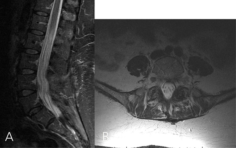 Repeated-lumbar-MRI-done-11-months-after-the-surgery.-A:-Sagittal-T2-weighted-image-showing-no-residual-canal-stenosis.-B:-Axial-T2-weighted-image-showing-that-the-cystic-lesion-involving-the-left-L5-S1-facet-complex-has-resolved-completely
