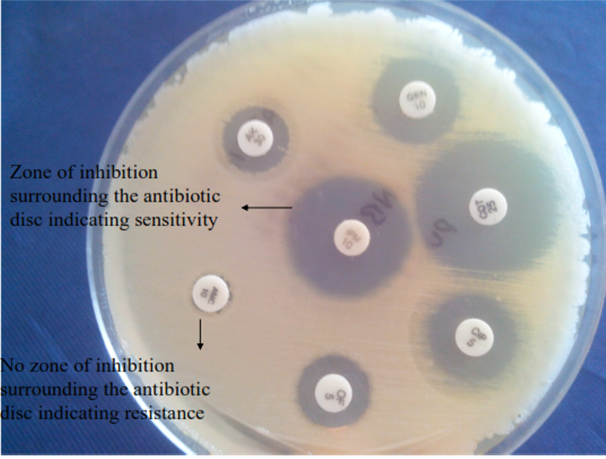 antimicrobial suscepibility pattern of escherichia coli Antibiotic susceptibility pattern of escherichia coli with the rampant use (or rather misuse) of antibiotics, there is a drastic change in the susceptibility pattern.