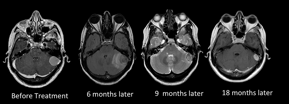 Multisession-CyberKnife-radiosurgery-for-a-petrosal-meningioma-in-a-patient-affected-by-multiple-sclerosis.