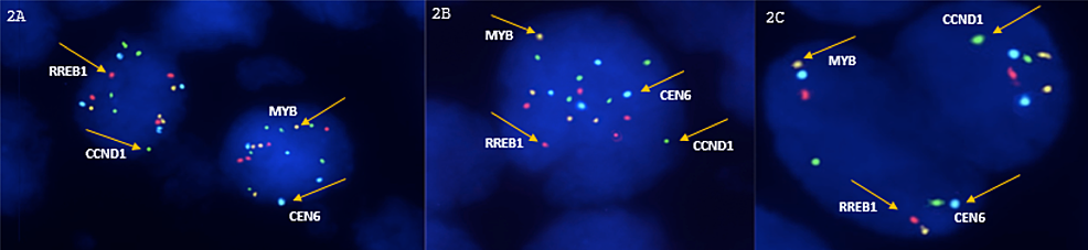 Fluorescent-in-situ-hybridization-(FISH)-for-RREB1,-MYB,-and-CCND1