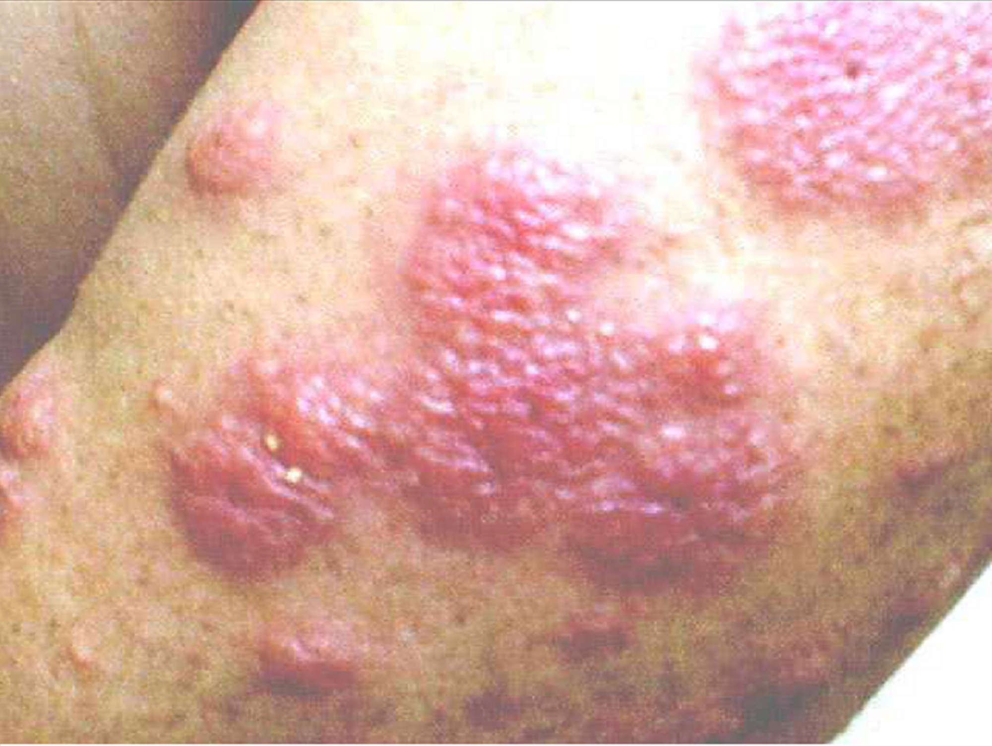 cureus sweet syndrome associated with upper respiratory