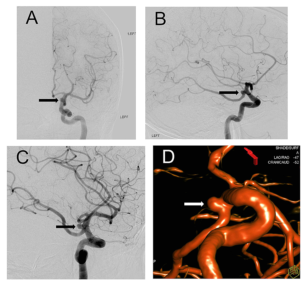 Digital-Subtraction-Angiography-(DSA)-with-3-Dimensional-Reconstruction