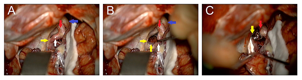 Intraoperative-Clipping