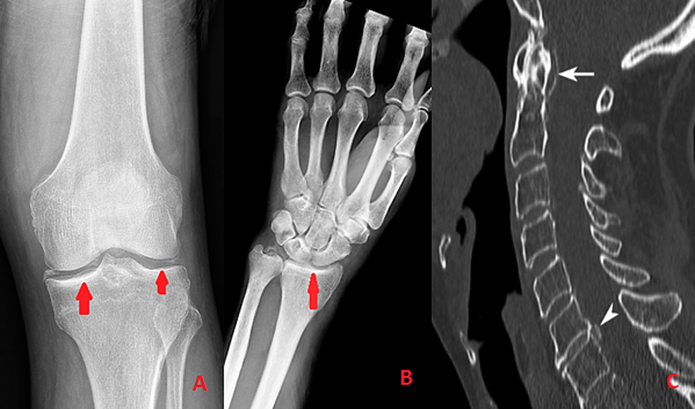 A-&-B-showing-chondrocalcinosis-evident-on-Xray,-C-showing-crowned-dense-syndrome.