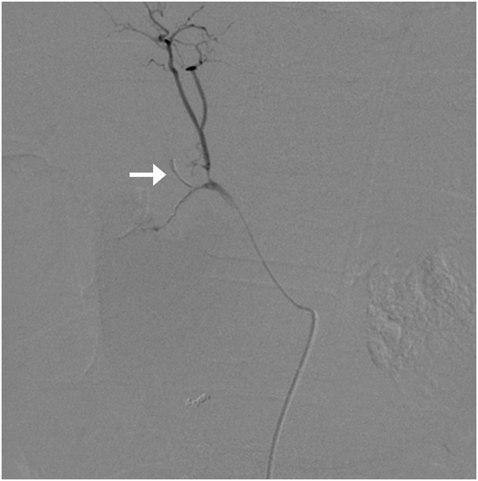 While-embolizing-the-gastroduodenal-artery,-a-part-of-the-coil-got-dislodged-into-the-right-hepatic-artery-(arrow)-resulting-in-its-occlusion.
