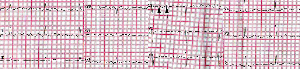 ECG-after-intravenous-administration-of-amiodarone