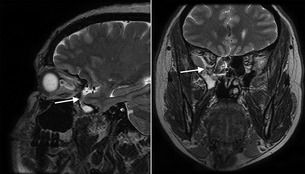 MRI-of-the-brain-without-contrast