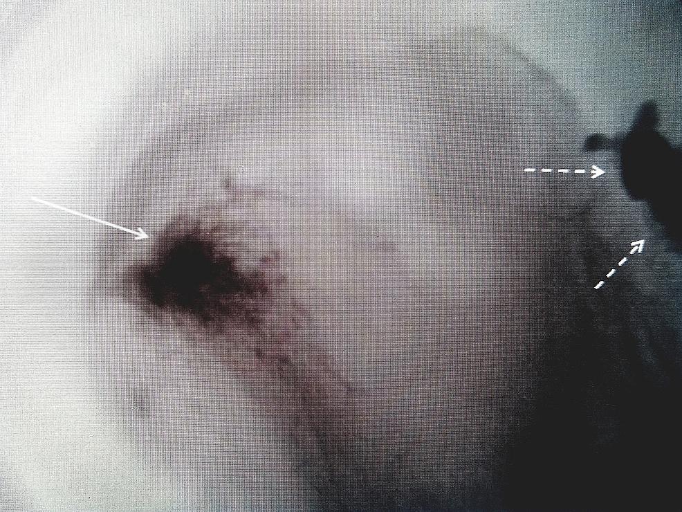 Use-of-bone-cement-for-symptomatic-iliac-crest-fracture