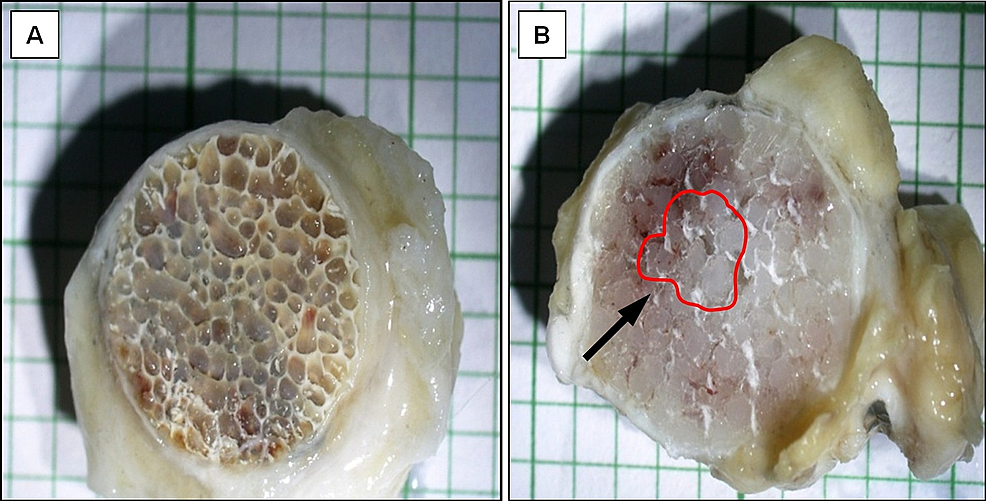 Cross-section.-(A)-bovine-bone-dHA-implant-showing-tissue-ingrowth-occupying-the-entire-implant-area.-(B)-Medpor®-implant-showing-tissue-ingrowth-sparing-the-central-area-(black-arrow)-of-the-implant