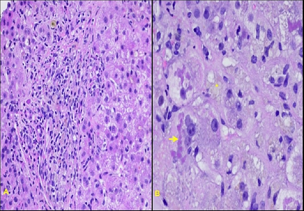 Biopsies-of-the-liver:-(A)-histology-notable-for-steatohepatitis-like-ballooning-degeneration,-with-(B)-fatty-change-(asterisk)-and-prominent-Mallory-bodies-(arrow),-confirming-amiodarone-induced-hepatotoxicity