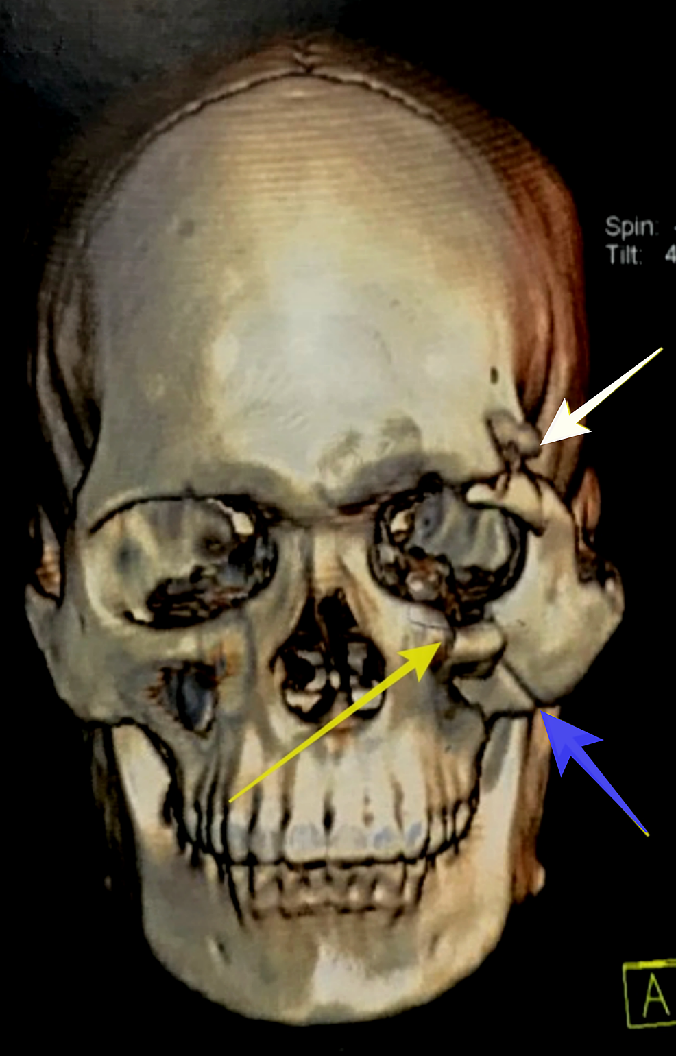 Virtual-three-dimensional-reconstruction-of-computed-tomography-scan-demonstrating-fracture-at-left-front-zygomatic-region-(white-arrow),-left-zygomatic-maxillary-buttress-(blue-arrow),-left-infra-orbital-rim-(yellow-arrow).