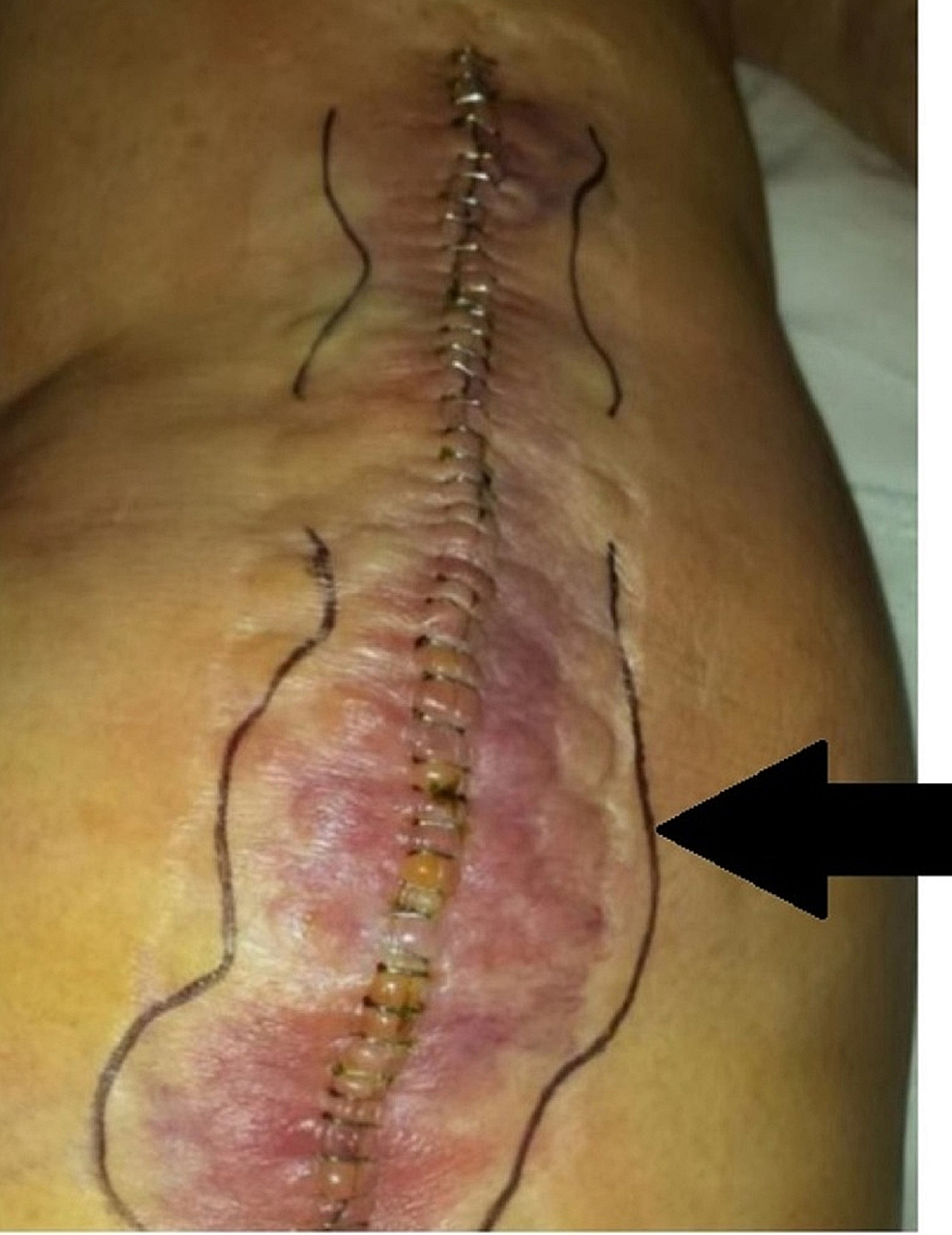 Picture-showing-a-staple-closure-patient-who-was-readmitted-to-the-hospital-for-a-postoperative-wound-infection