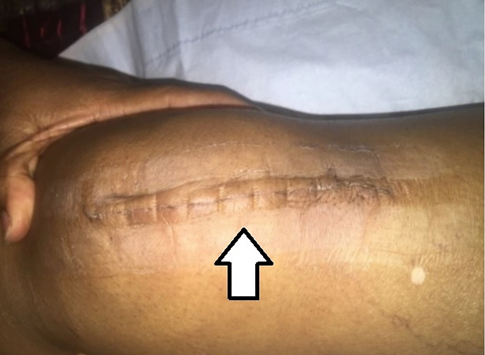 Close-up-picture-of-zip-closure-scar-at-day-14-postop.