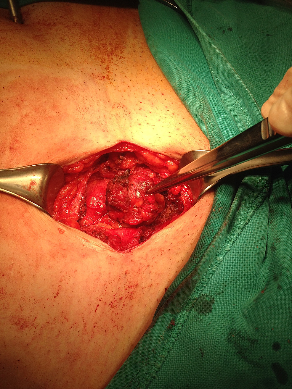 Intraoperative-image-showing-the-endometrioma-in-the-subcutaneous-tissue-of-the-abdominal-wall.