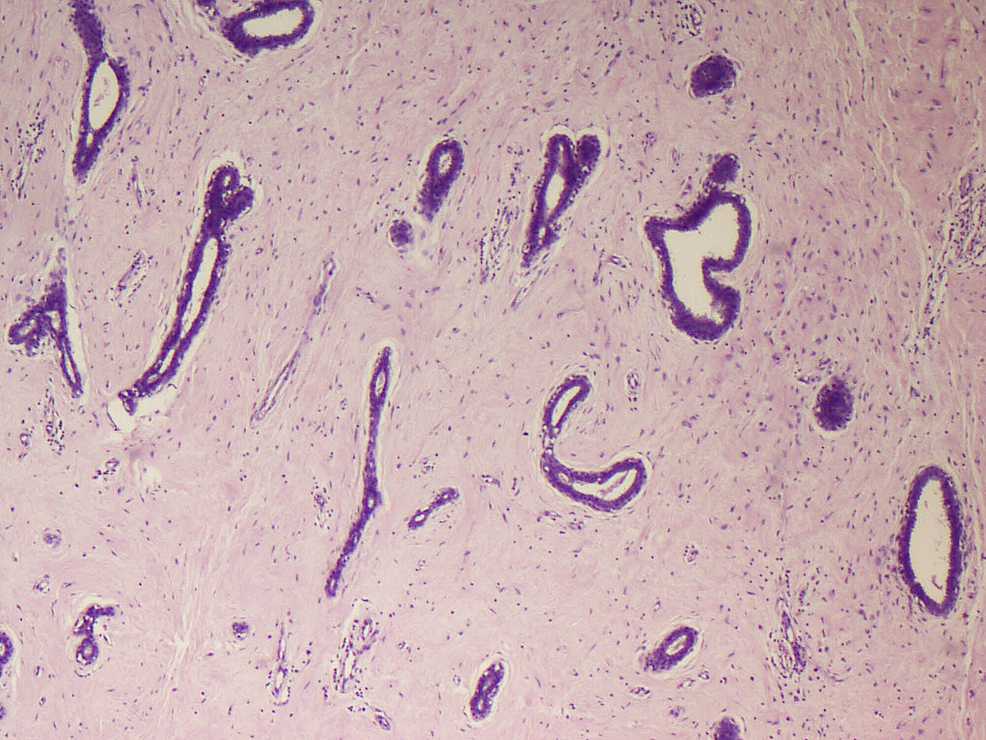 Fibroadenoma-with-compressed-ducts-(H&E-x100)