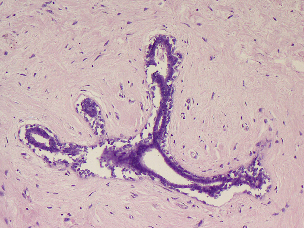 Fibroadenoma-with-compressed-ducts-(H&E-x200)