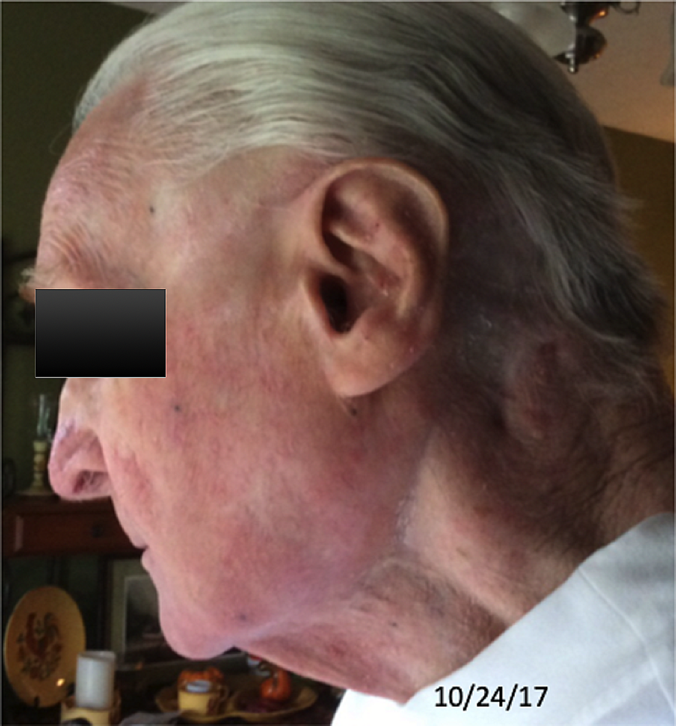 Six-years-post-treatment