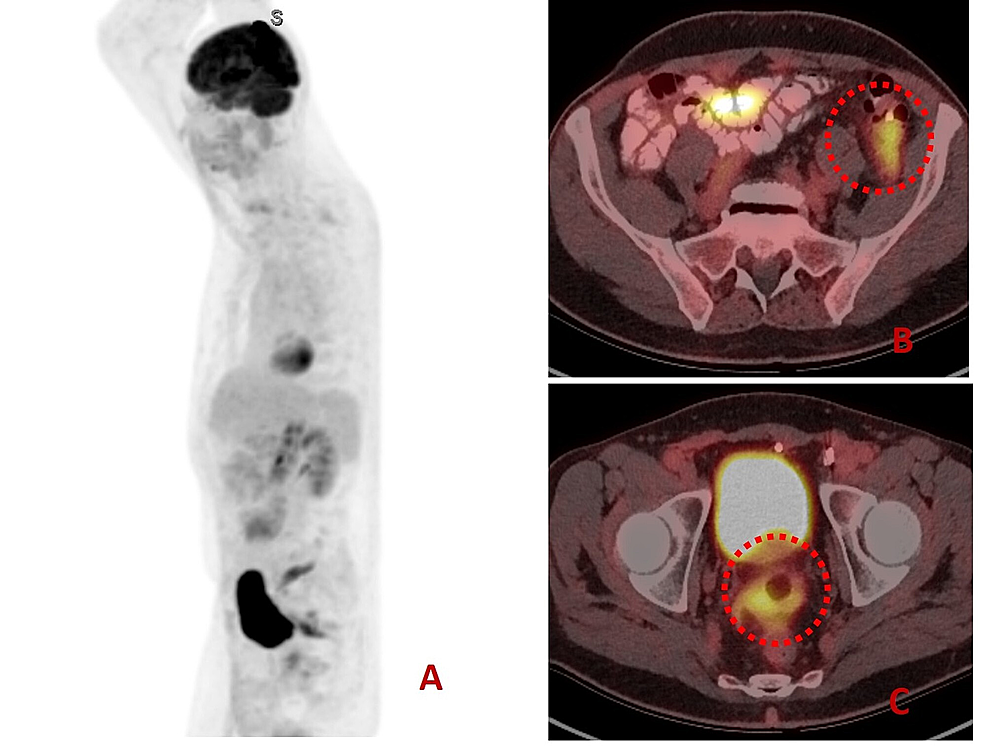 Positron-emission-tomography-(PET)-showing-whole-body-and-axial-views.