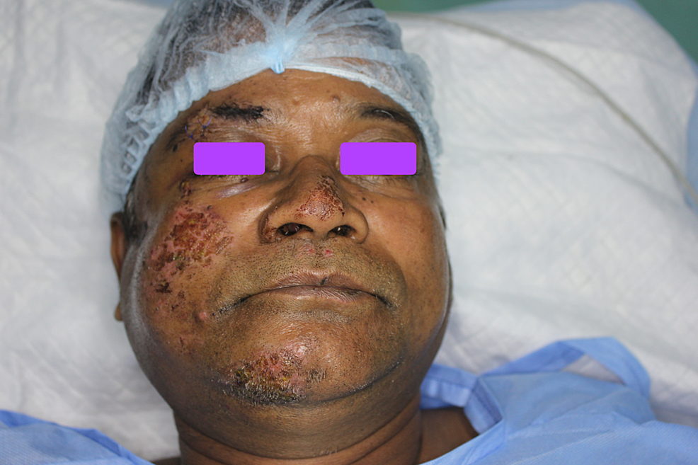 Frontal-clinical-picture-exhibiting-abrasions-over-the-right-zygoma-and-chin-region