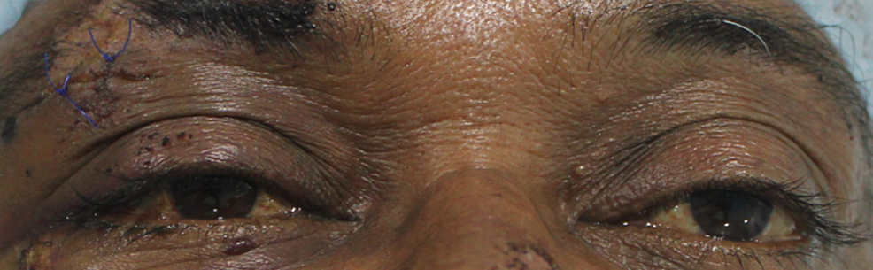 Close-up-image-of-eyes-demonstrating-the-lack-of-an-obvious-subconjunctival-hemorrhage