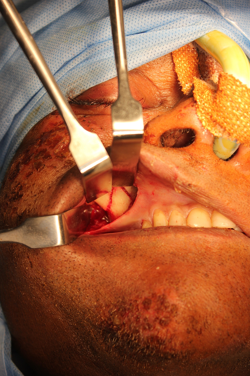 Surgical-exposure-of-the-fracture-at-the-right-zygomatic-maxillary-buttress-region