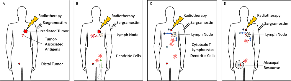 Induction-of-Abscopal-Response-by-Radiotherapy-and-Sargramostim