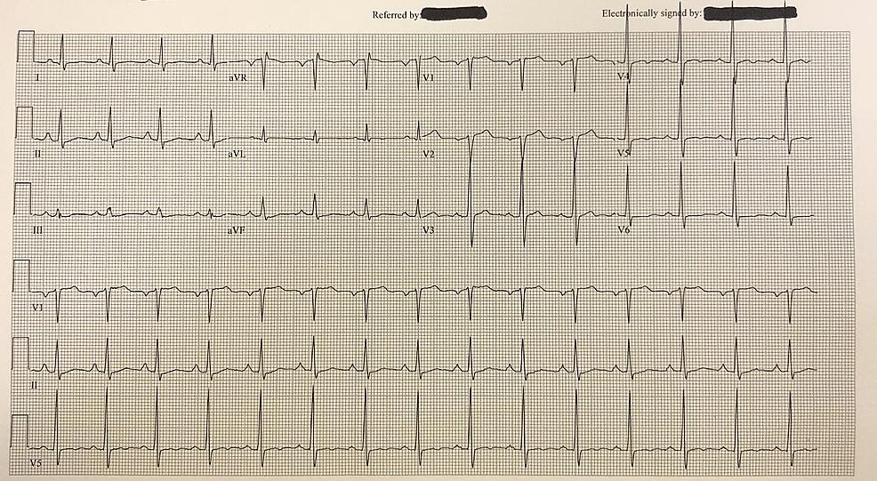 Electrocardiogram-(EKG)-displaying-hyperdynamic-QRS-waves