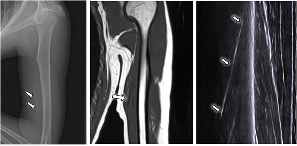 Radiograph,-MRI,-and-an-ultrasound-image-of-the-left-upper-extremity