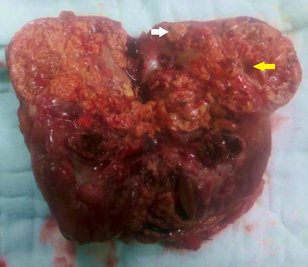 Clinical-photograph-of-the-radical-nephrectomy-specimen-opened-along-the-lateral-renal-border-showing-tumor-involving-the-upper-pole-and-interpolar-region.-The-tumor-is-composed-of-focal-fleshy-(white-arrow)-and-necrotic-areas-(yellow-arrow)-with-vascular-spaces