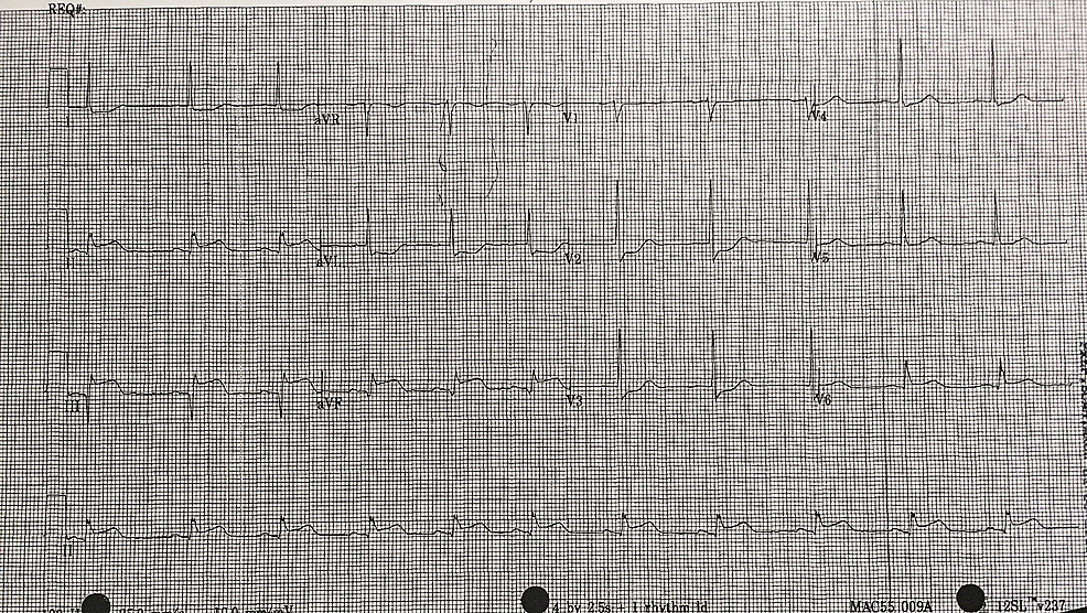 12-lead-electrocardiogram-(ECG)-90-minutes-post-thrombolytic-therapy-showing-persistence-of-ST-elevation-in-leads-II,-III,-aVF-and-the-associated-reciprocal-changes.