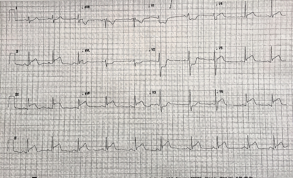 12-lead-electrocardiogram-(ECG)-with-evidence-of-an-infero-posterior-ST-elevation-myocardial-infarction-(MI)-with-ST-elevation-in-leads-II,-III,-aVF-in-addition-to-leads-V4,-V5,-V6.-There-are-reciprocal-changes-in-leads-I,-aVL,-V1-V3.-Significant-ST-depression-and-tall-R-waves-are-seen-in-leads-V1-V3-that-can-be-an-indicator-of-posterior-myocardial-damage.