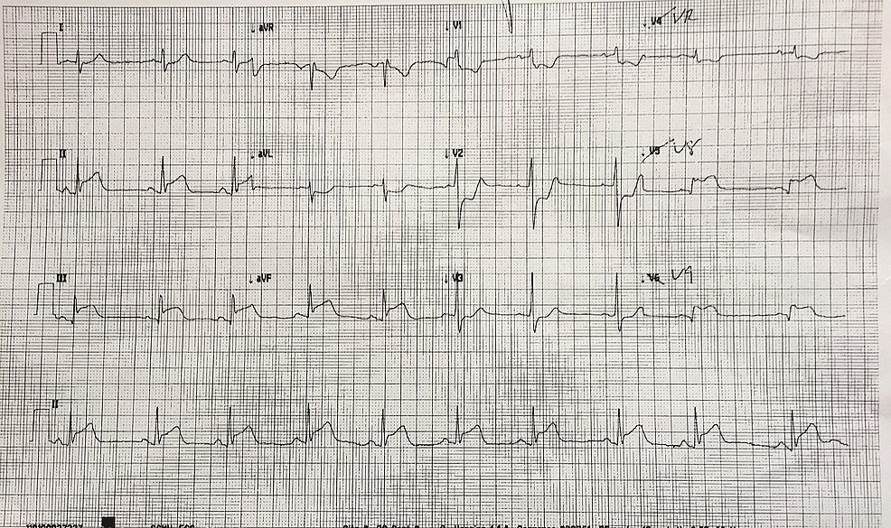 15-lead-electrocardiogram-(ECG)-showing-ST-depression-in-lead-V4R-and-ST-elevation-in-leads-V8-&-V9,-confirming-the-presence-of-a-posterior-myocardial-infarction.-This-is-in-addition-to-the-inferior-changes-in-leads-II,-III,-and-aVF.
