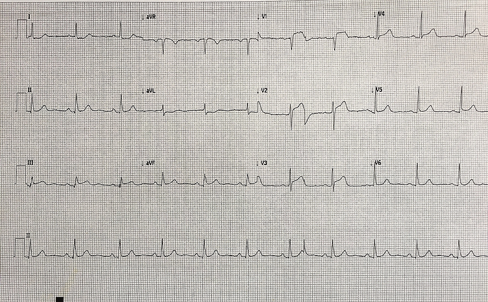 12-lead-electrocardiogram-(ECG)-with-evidence-of-an-antero-septal-myocardial-infarction,-with-ST-elevation-predominantly-in-leads-V1-V3.-There-is-reciprocal-ST-depression-in-leads-I-and-aVL.