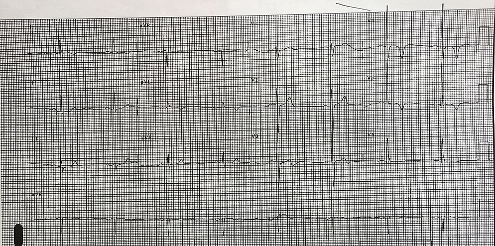12-lead-electrocardiogram-(ECG)-consistent-with-Wellens-syndrome.-The-T-wave-in-lead-V3-is-biphasic.-There-are-also-notable-T-wave-inversions-in-leads-V4-and-V5.-The-patient-was-later-confirmed-to-have-significant-left-anterior-descending-(LAD)-occlusion.