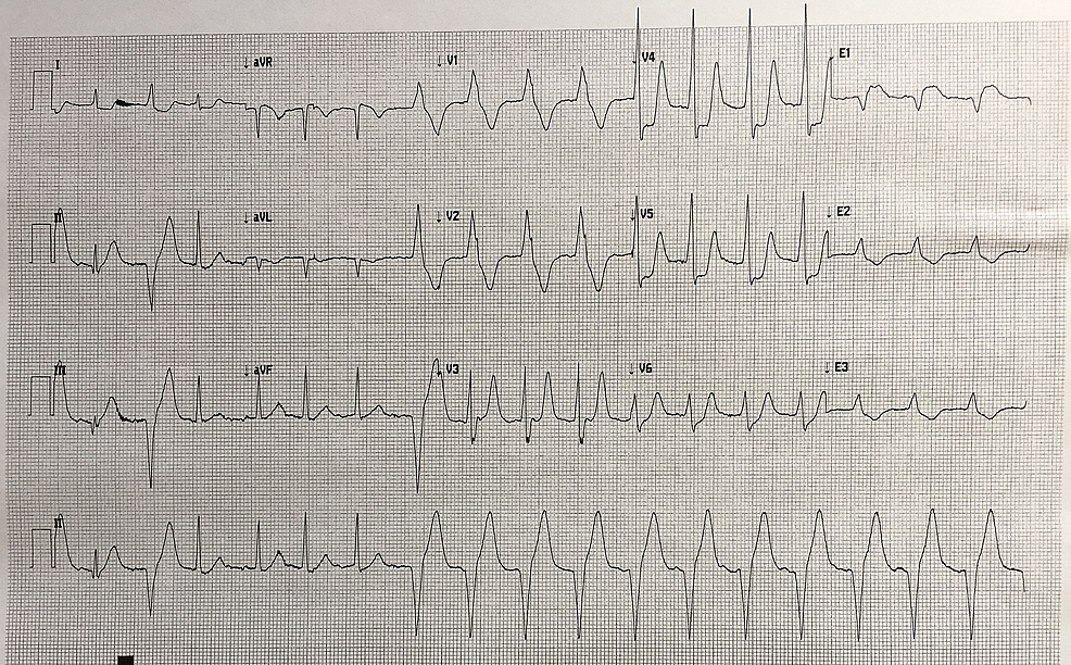 15-lead-electrocardiogram-(ECG)-demonstrating-a-transition-of-rhythm-from-sinus-with-a-PVC-into-accelerated-idioventricular-rhythm-(AIVR)-in-a-patient-administered-thrombolytics-for-the-treatment-of-myocardial-infarction.