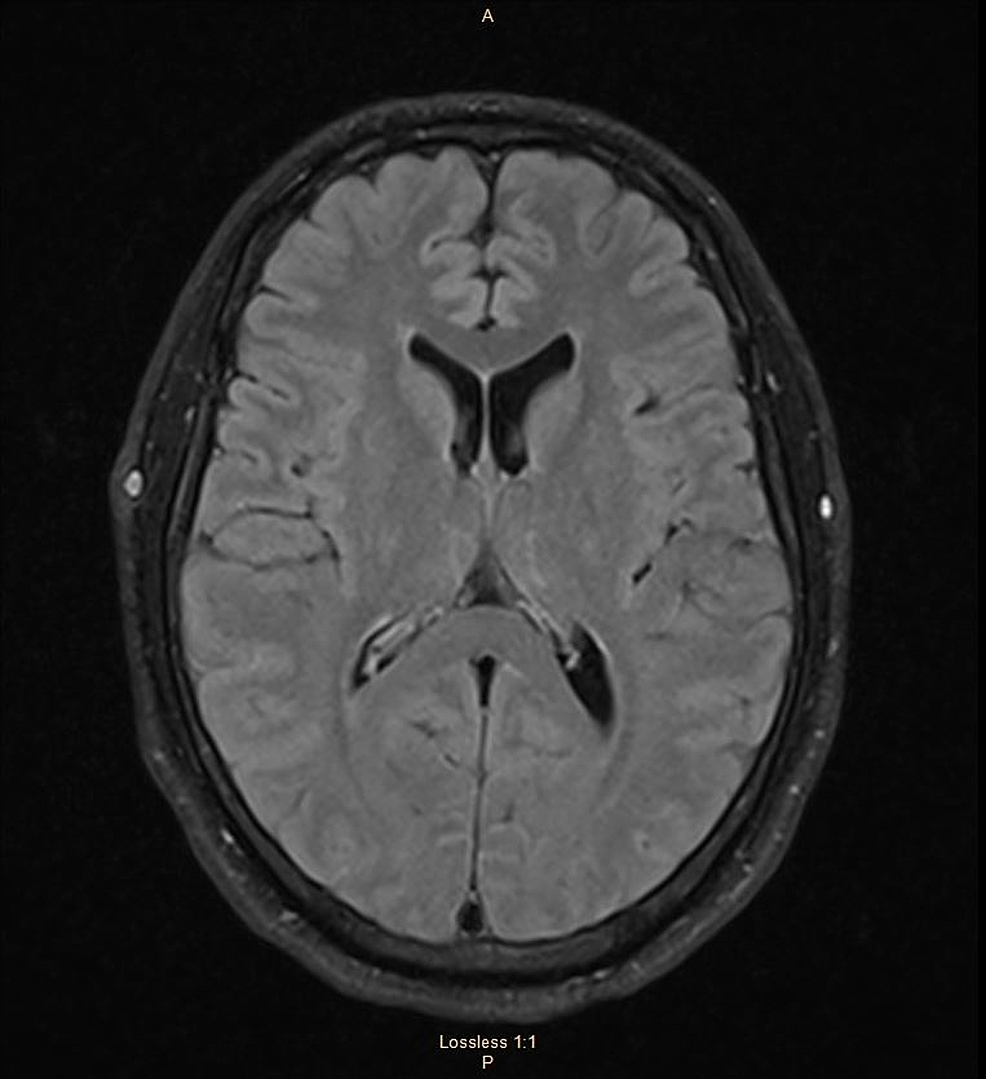 MRI-of-the-brain-FLAIR-sequence;-axial-images-within-normal-limits