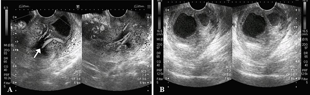 Transvaginal-ultrasound-images.