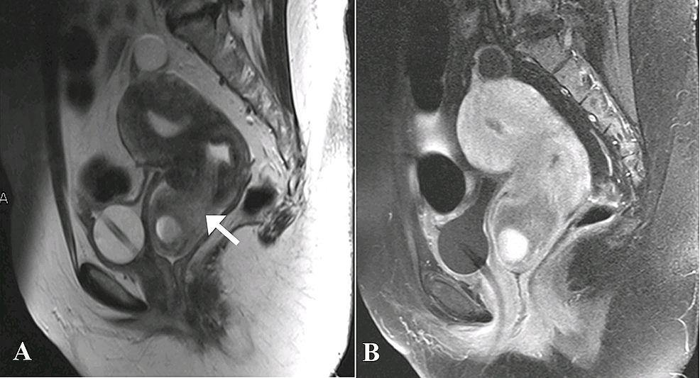 Magnetic-resonance-images---A)-Sagittal-T2-weighted-and-B)-Sagittal-T1-post-contrast.