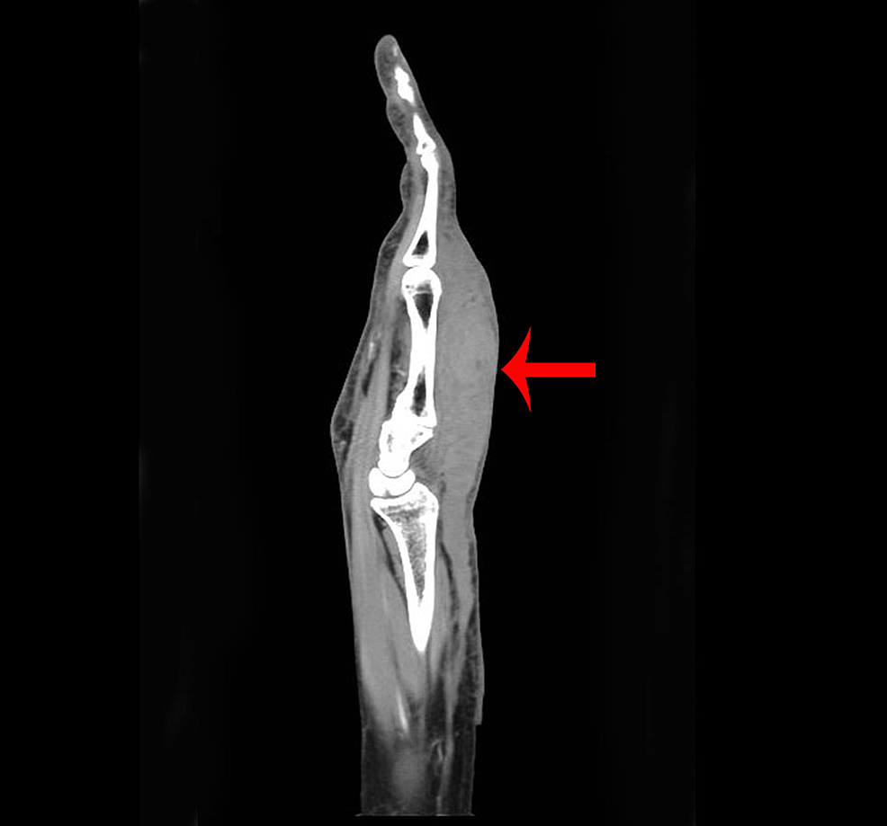 CT-scan-of-hand-(coronal-view)