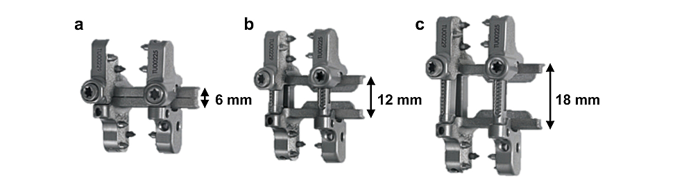 Novel-adjustable-interspinous-process-fixation-device-
