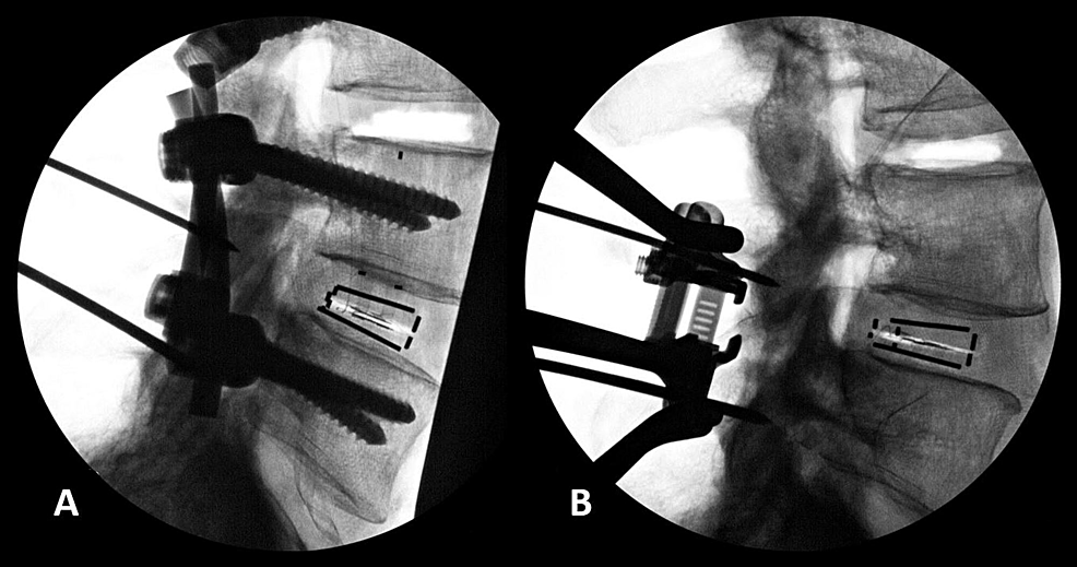 Lateral-fluoroscopic-images
